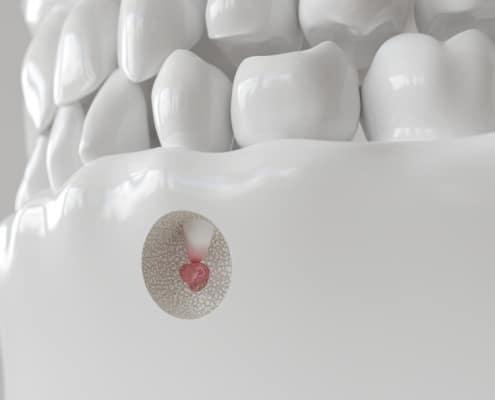 Apektomie mit entzündeter Zahnwurzel