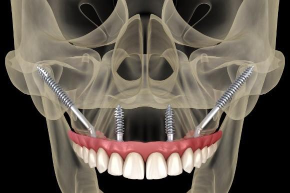 Grafische Darstellung Zygoma-Implantate