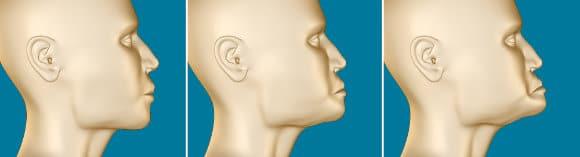 Grafische Darstellung Knochenschwund nach Zahnverlust